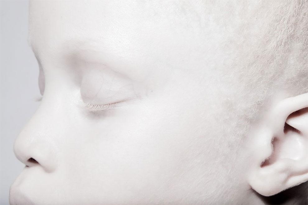 Альбиносы-близнецы из Бразилии с феноменальной внешностью