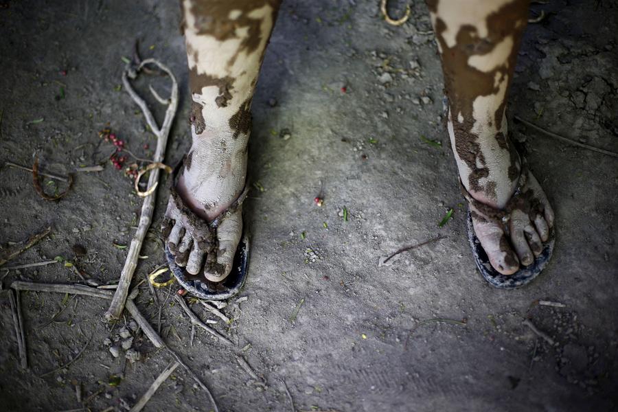 Покрытые грязью ноги ребенка на улице которая пострадала от наводнения в Лос-Лорос, Чили
