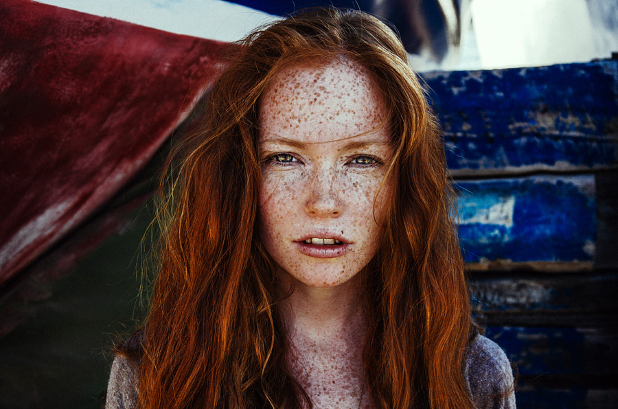 freckles_23