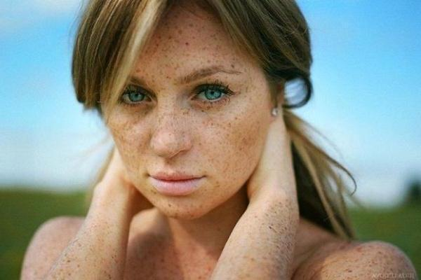 freckles_32
