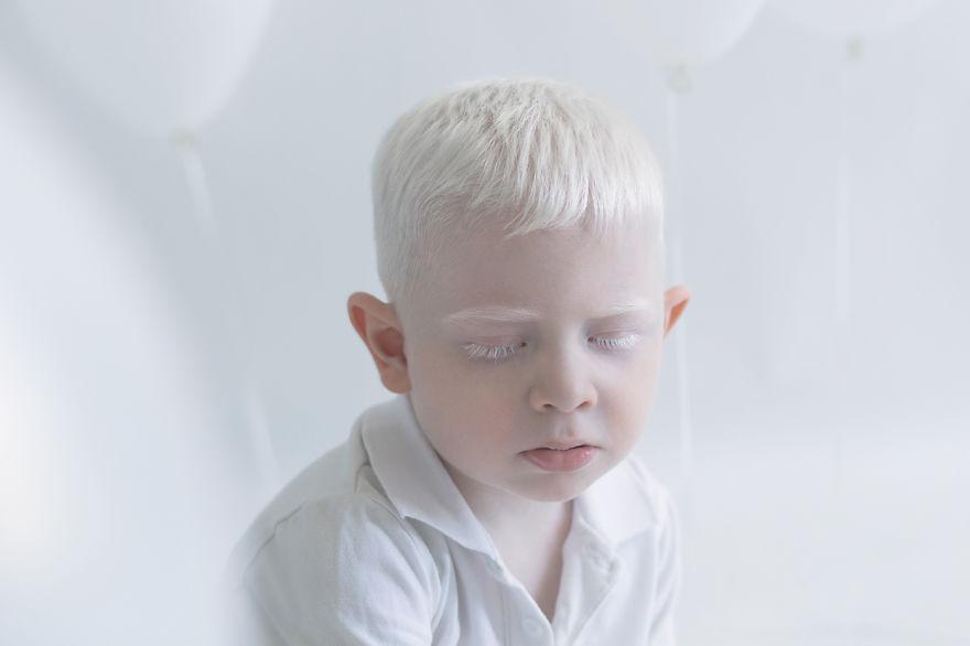 albinos_03