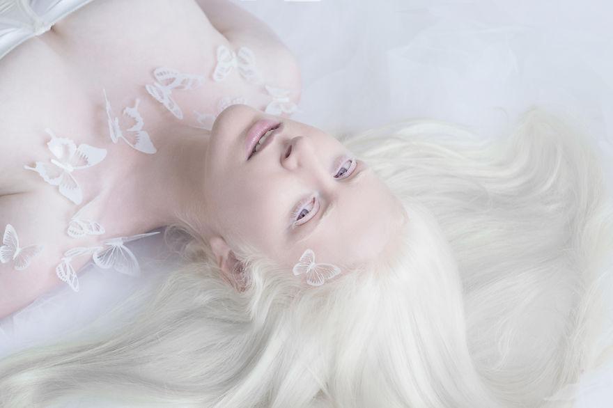 albinos_04