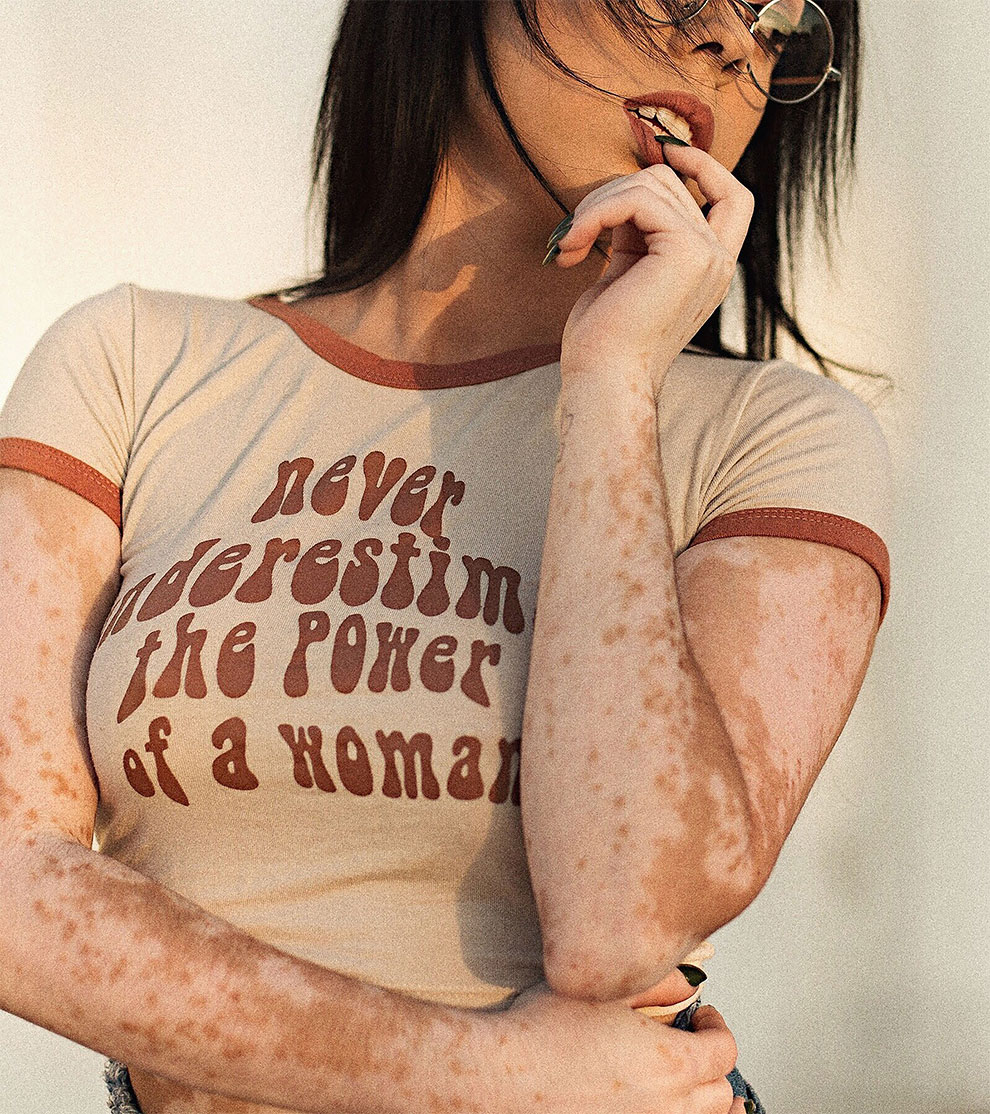 Девушка научилась любить свою кожу, превратив её в произведение искусства