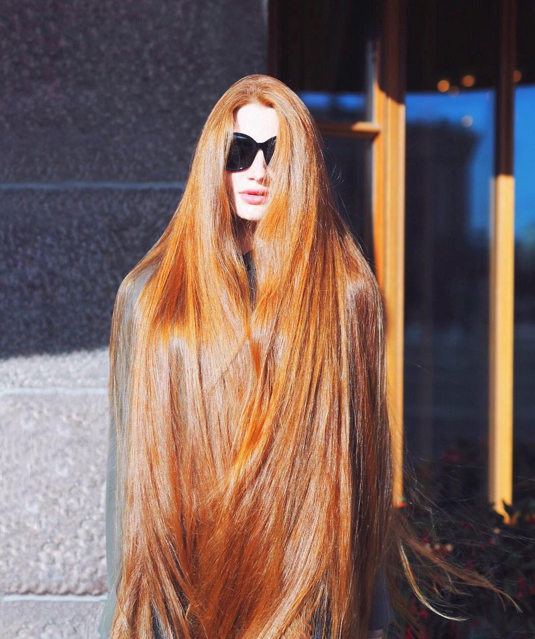 Девушка которая страдала от алопеции, смогла победить болезнь и отрастить красивые длинные волосы