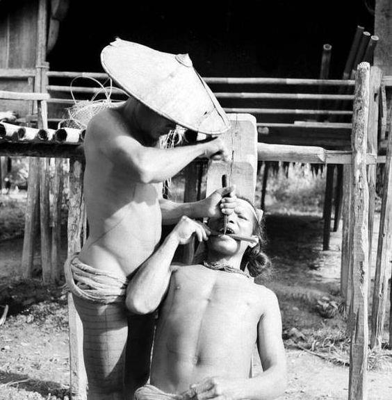 Ужасы стоматологии прошлого